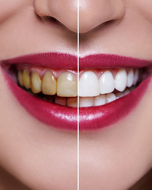 Woman Teeth before and after dental trea