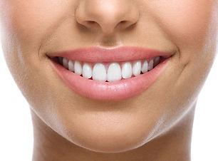 Optimum-Dental-Teeth-Whitening.jpg