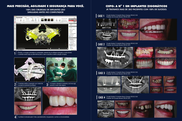 Zygomatic implants the anatomy guided approach