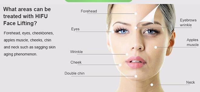 HIFU face forhead eyes wrinkle cheek double chin