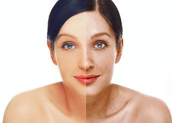 Gesicht Pigmentflecken.jpg