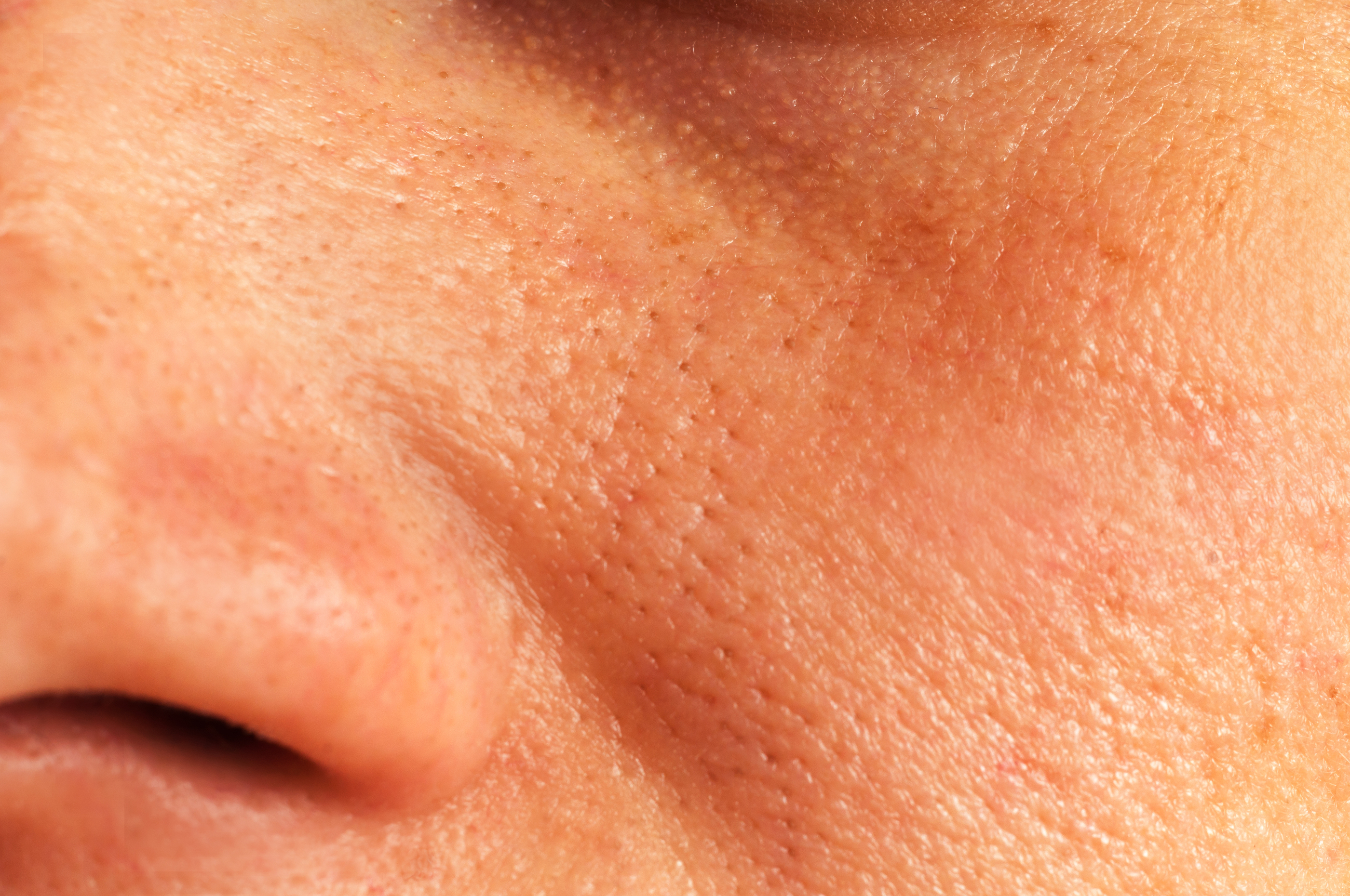 Как очистить поры на носу в домашних условиях? 14