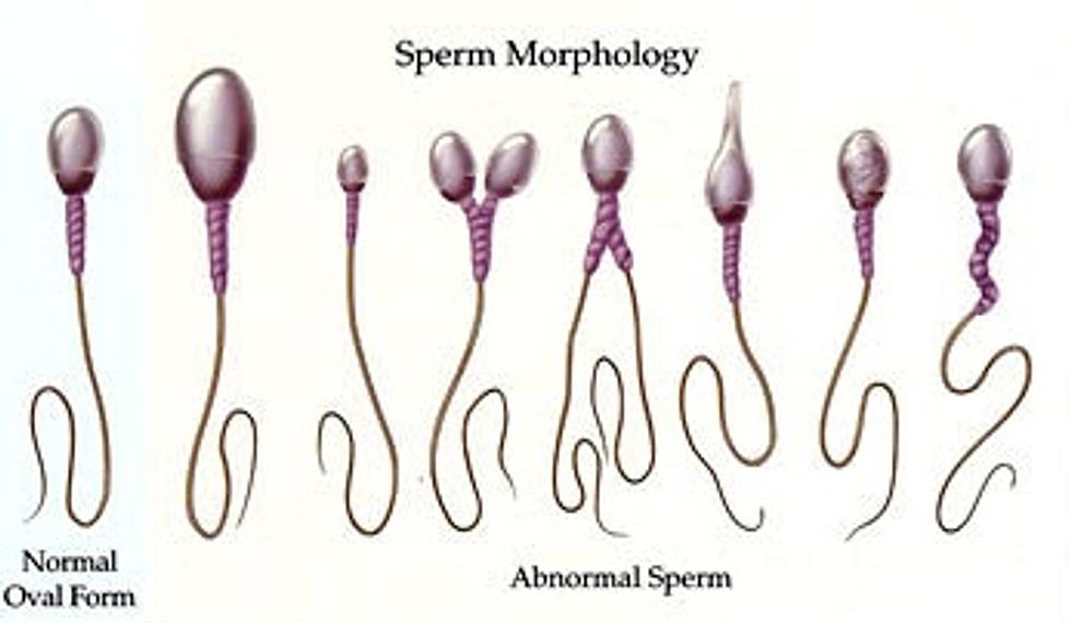 kak-uluchshit-morfologiyu-i-podvizhnost-spermatozoidov