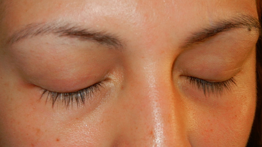 After #1 - Removal by Lash Concepts