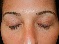 After #5 - Removal by Lash Concepts