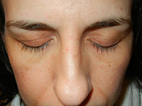 After #4 - Removal by Lash Concepts