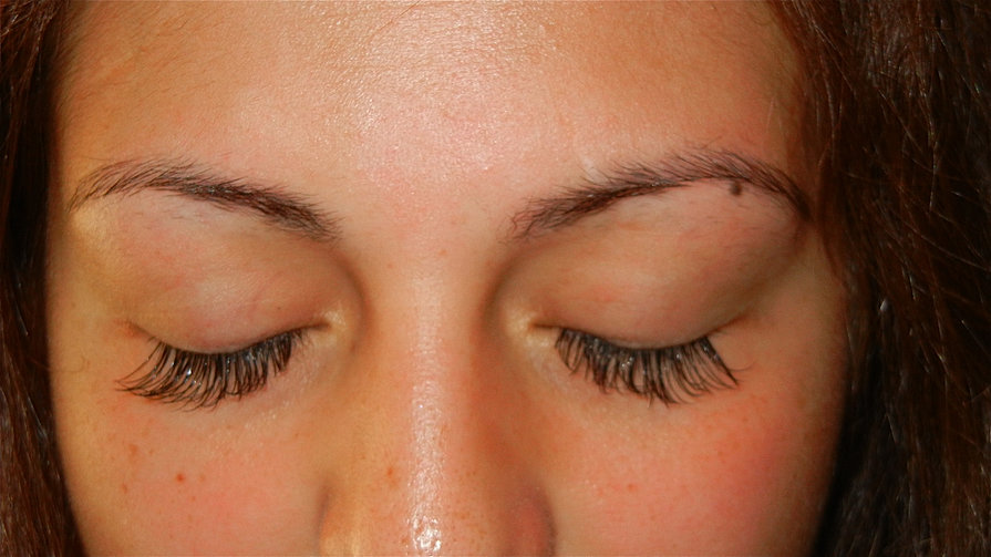 After #1 - Repair by Lash Concepts