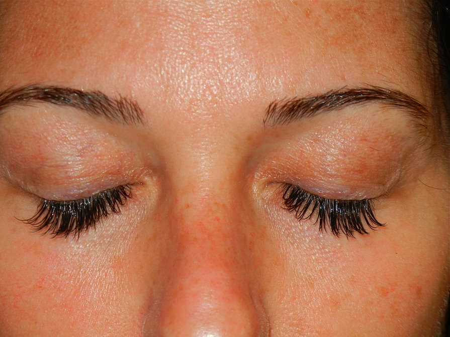 After #5 - Repair by Lash Concepts