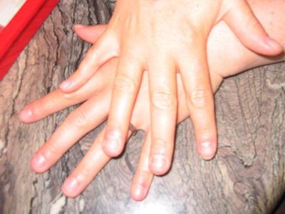 skin & beauty køge store piger porno