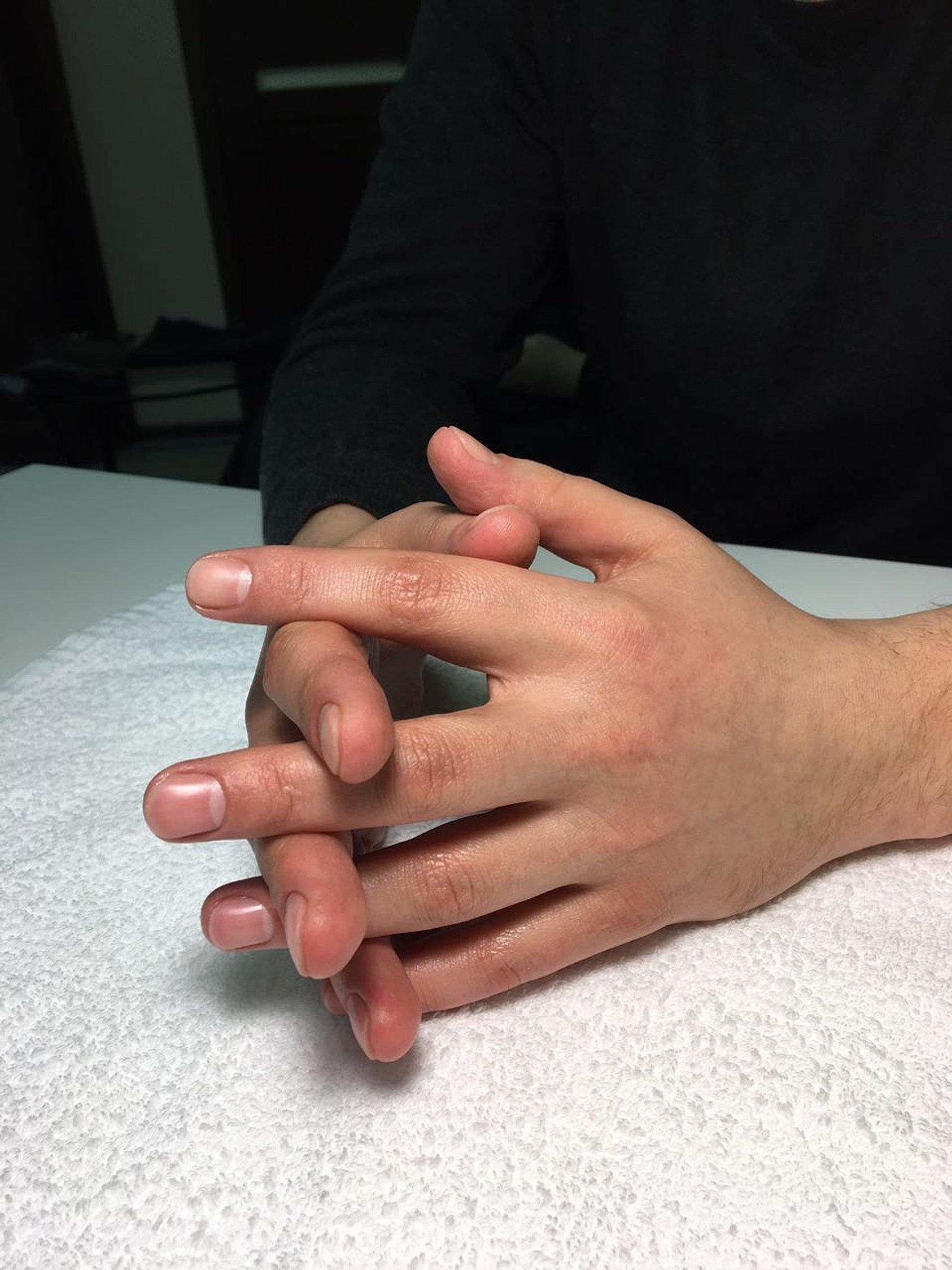 Фото рук до маникюра