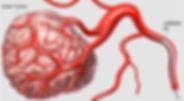 Kanserde kemoembolizasyon