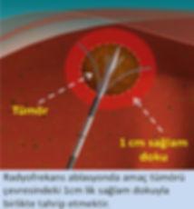 Radyofrekansta tümörle birlikte çevredeki 1cm lik sağlam doku da yakılır.