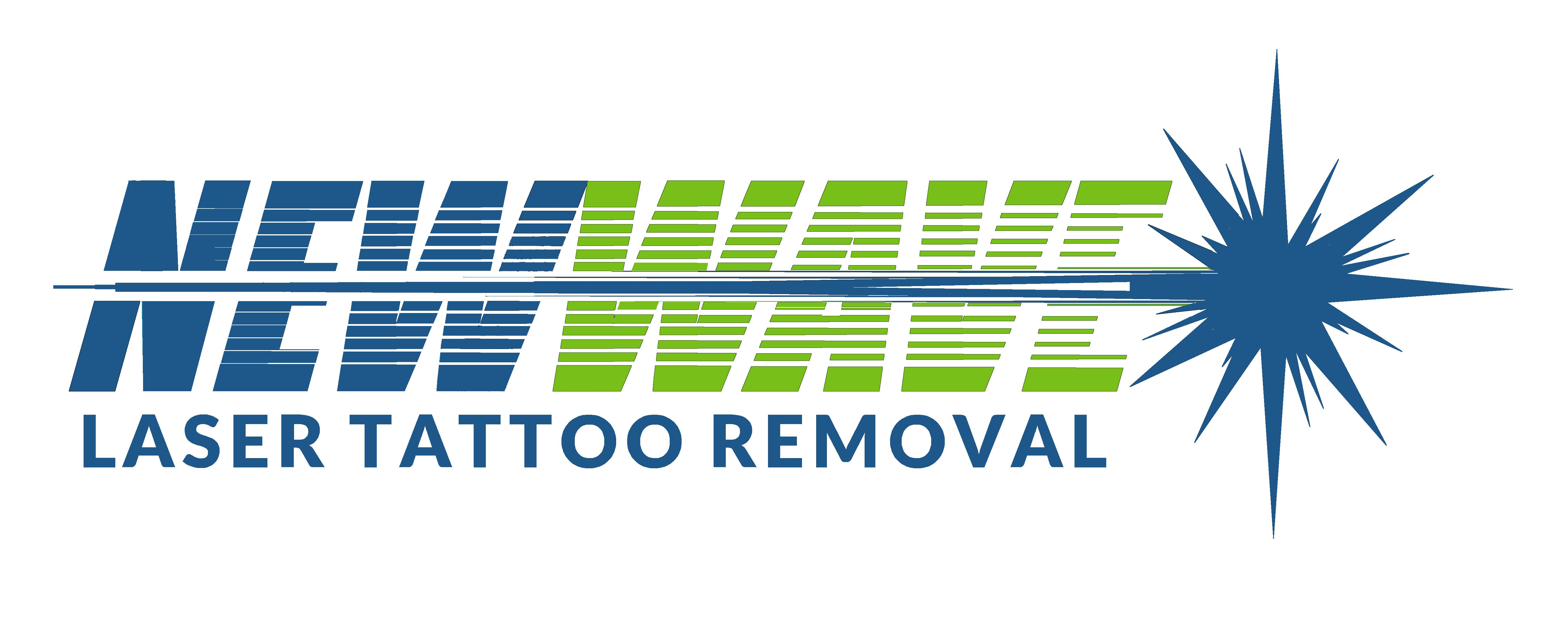 New wave laser tattoo removal bethlehem pa tat removal for Tattoo removal nj