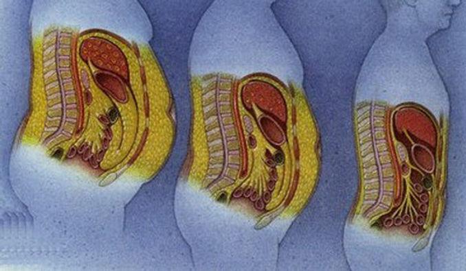graisse abdominale chez l homme le stress aussi domicil 39 gym. Black Bedroom Furniture Sets. Home Design Ideas