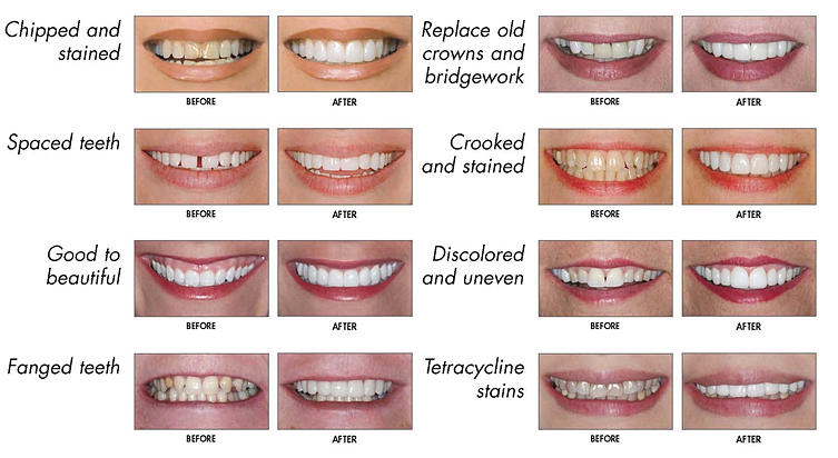 Image detailing different types of teeth problems