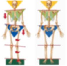 Posture, TMJ doctor in Massachusetts, Headaches, Facial pain, grinding teeth, Ramin Mehregan, Massachusetts dentist, TMJ specialist