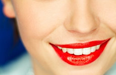 Cheapest Teeth Whitening Oxford, wedding teeth whitening Oxford,same day teeth whitening Oxford,Cosmetic Dentists Oxford,Teeth Bleaching Oxford,Bleaching Teeth,Stained Teeth,Discoloured Teeth,Yellow Teeth, Brown Teeth, whitening tray