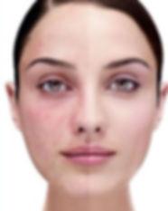 Treatment of Acne Rosacea sandiegopurple