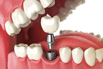 impianto-dentale.jpg