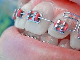 501564_aparelho_dental.jpg