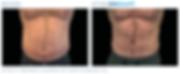 Emsculpt_PIC_Ba-card-male-abdomen-007_EN