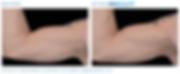 Emsculpt_PIC_Ba-card-male-arms-095_ENUS1
