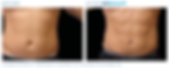 emsculpt_pic_ba-card-male-abdomen-070_en