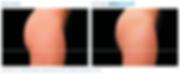 Emsculpt_PIC_Ba-card-female-buttock-016_