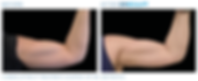 Emsculpt_PIC_Ba-card-female-arms-113_ENU