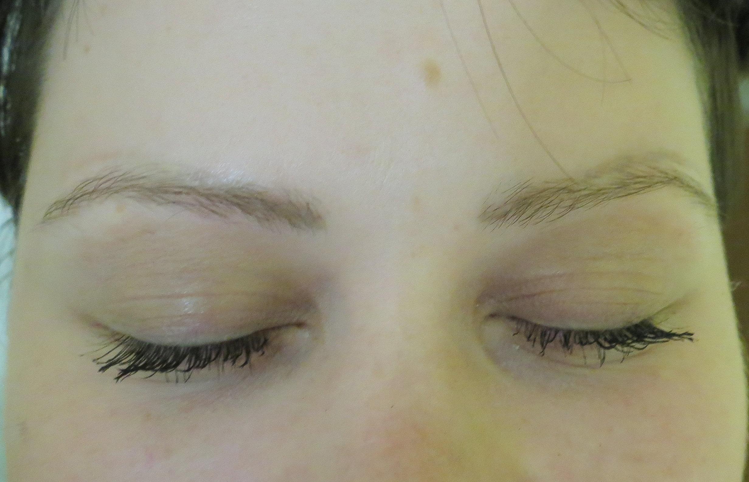 Удаление волос лазером ульяновск