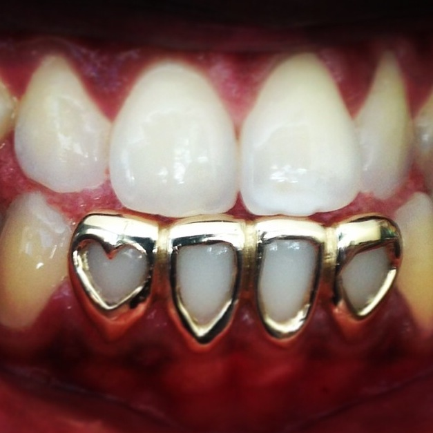 Permanent Gold Teeth Designs   www.imgkid.com - The Image ...