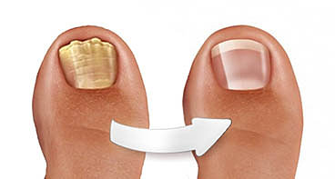 Против грибка ногтей на ногах что лучше