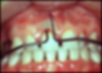 teeth 1.png