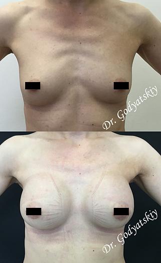 Пластик операция на груди 97