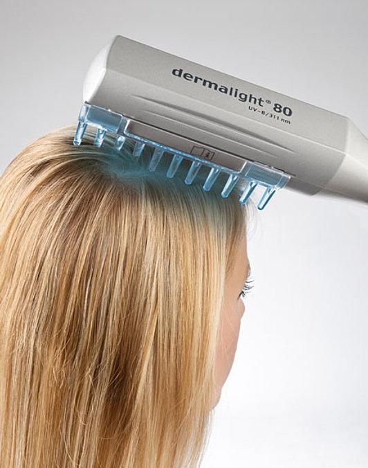 Картинки по запросу пува терапия волосистой части головы