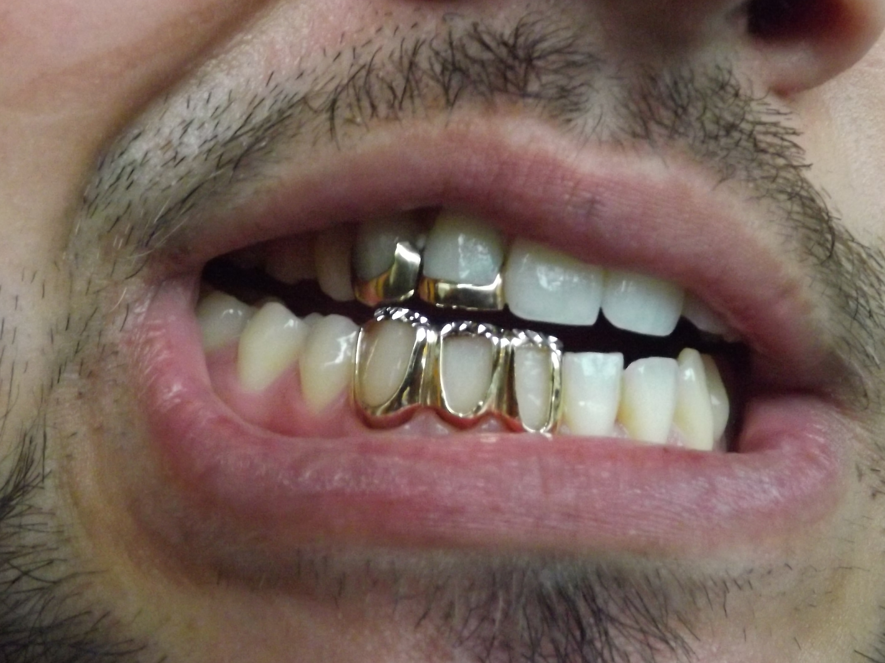3 open face gold teeth | Mouth Full Of Golds