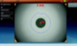 ファイバースコープオプション2.jpg