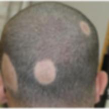 alopecia_.png
