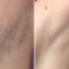 armpit before and after_LASER.png