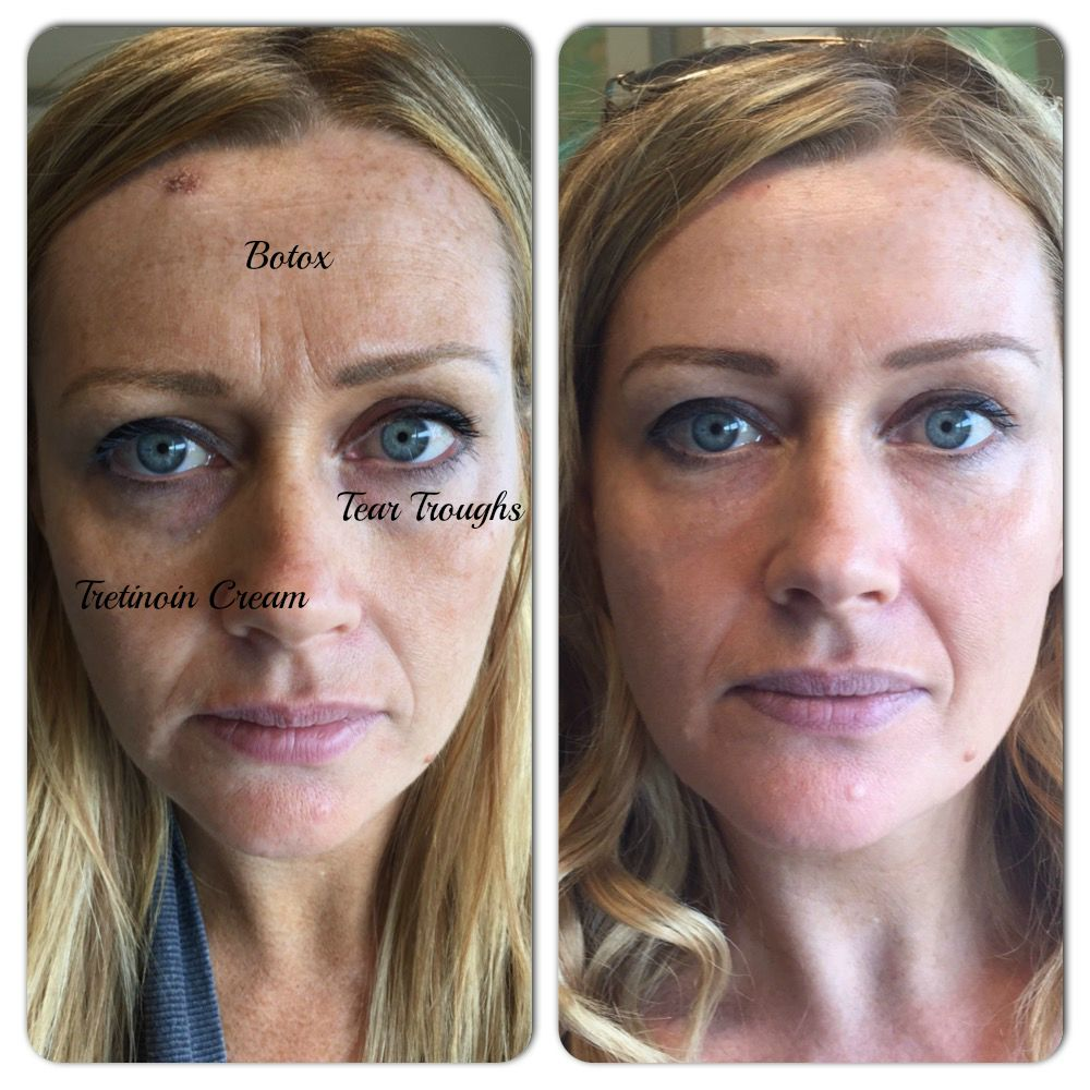 Before and After Photos Cosmetic Treatment
