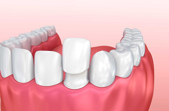 3-Benefits-of-Custom-Porcelain-Veneers.j