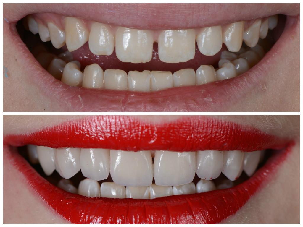 Стачивание зубов что это такое