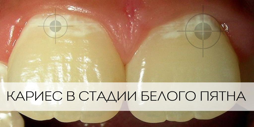 Желтые пигментные пятна на зубах