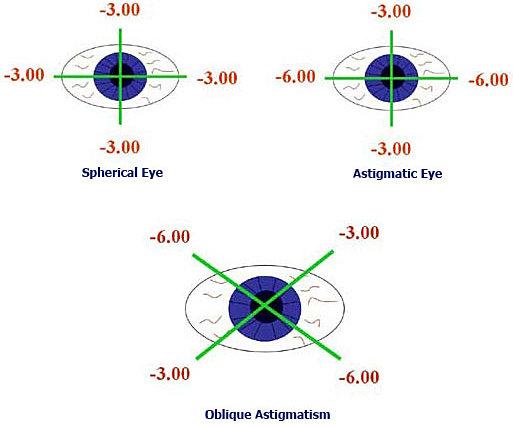 Клиника газпром операция на зрение