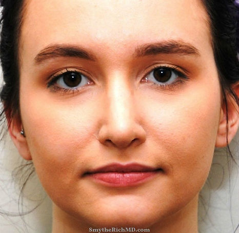 Rhinoplasty1-frontview-after.jpg
