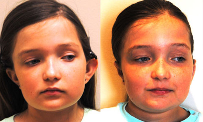 Otoplasty-Before-After.jpg