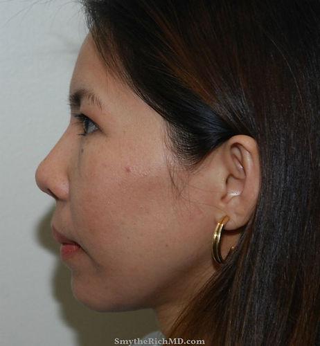 rhinoplasty-asian-after.jpg