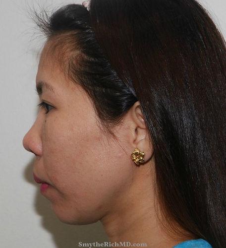 rhinoplasty-asian-before.jpg