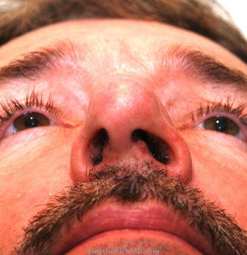 abbott-pre-basal-nose.jpg