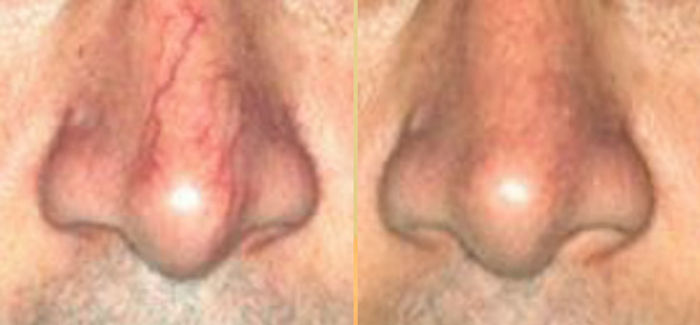 nose-before-after-side-by-side.jpg